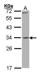 NBP1-32999 - KLK7 / Kallikrein-7