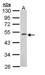NBP1-33006 - Njmu-R1