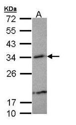 NBP1-33010 - Beta-crystallin A3