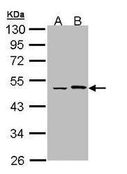 NBP1-33011 - Epoxide hydrolase 1 / EPHX1