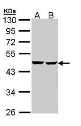 NBP1-33015 - SUCLA2