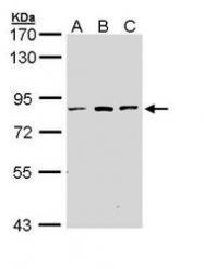 NBP1-33018 - ATP6V0A2