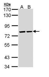 NBP1-33021 - ATP6V1A