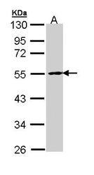 NBP1-33043 - PPP2R2B