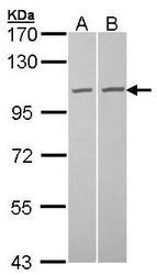 NBP1-33078 - CXCL6 / GCP2