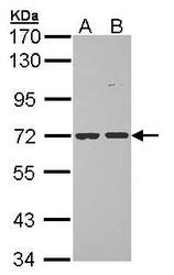 NBP1-33084 - POMGNT1