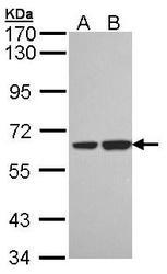 NBP1-33089 - Sorting nexin-18 (SNX18)