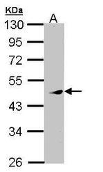 NBP1-33093 - MAPKAP Kinase-5