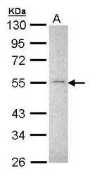 NBP1-33102 - MMP-16