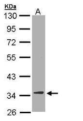 NBP1-33103 - DECR1