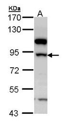 NBP1-33192 - 17-beta-HSD4 / HSD17B4