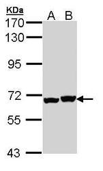 NBP1-33419 - DPYSL5 / CRMP5