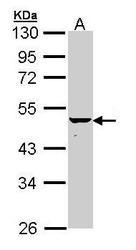 NBP1-33423 - Keratin-34 (KRT34)