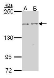 NBP1-33426 - EPB41L2