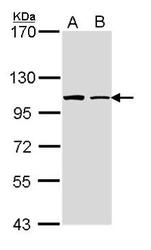 NBP1-33431 - Formin-like protein 1