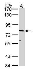 NBP1-33435 - ABCD2 / ALDR