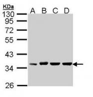 NBP1-33439 - CD326 / EPCAM / TACSTD1