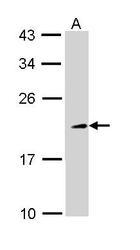 NBP1-33452 - TIA1