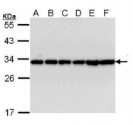 NBP1-33454 - 14-3-3 protein beta/alpha