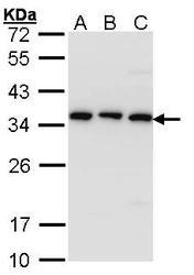 NBP1-33462 - CKAP1 / TBCB