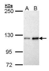 NBP1-33479 - Fibulin-2