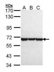 NBP1-33486 - CCT8 / TCP1 theta