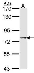 NBP1-33500 - Activin receptor type 1 (ACRV1)