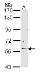NBP1-33512 - RCBTB2 / CHC1L