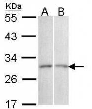 NBP1-33513 - CD66c / CEACAM6