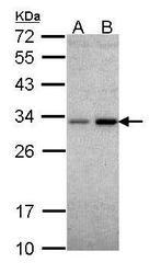 NBP1-33517 - NQO1