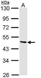 NBP1-33519 - Collagen type VI alpha 2 chain