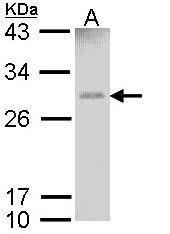 NBP1-33523 - GSTM1