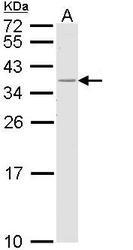 NBP1-33525 - HLA class II DR beta 1 / HLA-DRB1