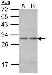 NBP1-33539 - PSMA7