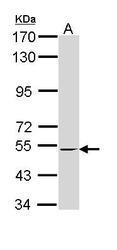 NBP1-33543 - RXR-beta / RXRB