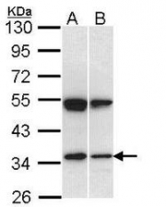 NBP1-33545 - Endophilin-A2