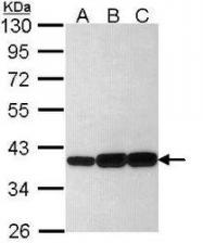 NBP1-33556 - AKR1C3 / DDH3