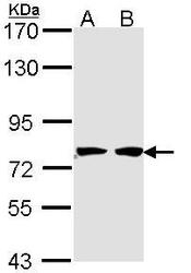 NBP1-33588 - HADHA