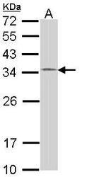 NBP1-33589 - HUS1
