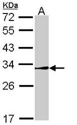 NBP1-33597 - NR0B2