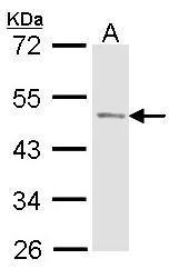 NBP1-33600 - ACPP /  Prostatic acid phosphatase