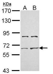 NBP1-33601 - Activin receptor type 2A (ACVR2A)