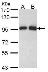NBP1-33604 - Gelsolin