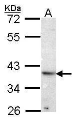 NBP1-33605 - Renin receptor