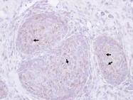 NBP1-33611 - Presenilin-1