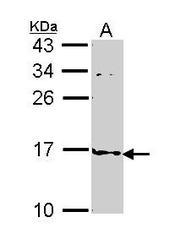 NBP1-33616 - FABP4