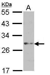 NBP1-33618 - FGF acidic / FGF1