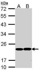 NBP1-33620 - Glutathione peroxidase 1 / GPX1