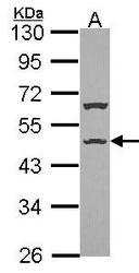 NBP1-33632 - ISLR