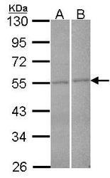 NBP1-33641 - FBXL2 / FBL2 / FBL3